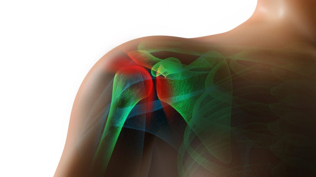 torn rotator cuff after a car accident