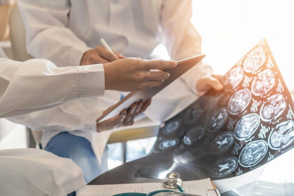 doctors reviewing brain scans